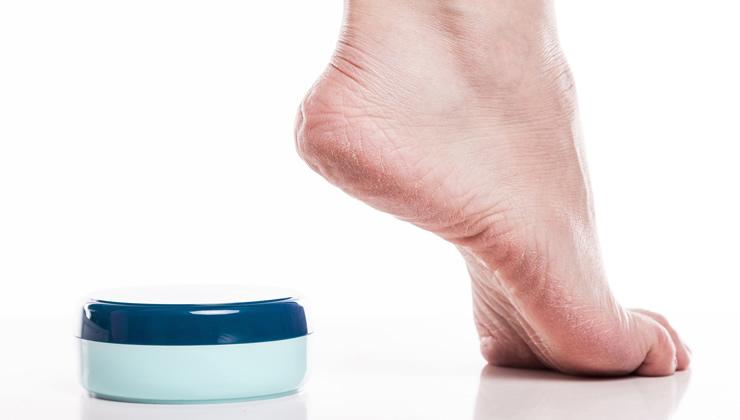 足裏の皮膚の特徴と角質ケア